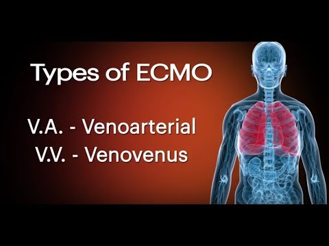 ECMO for heart and lung failure