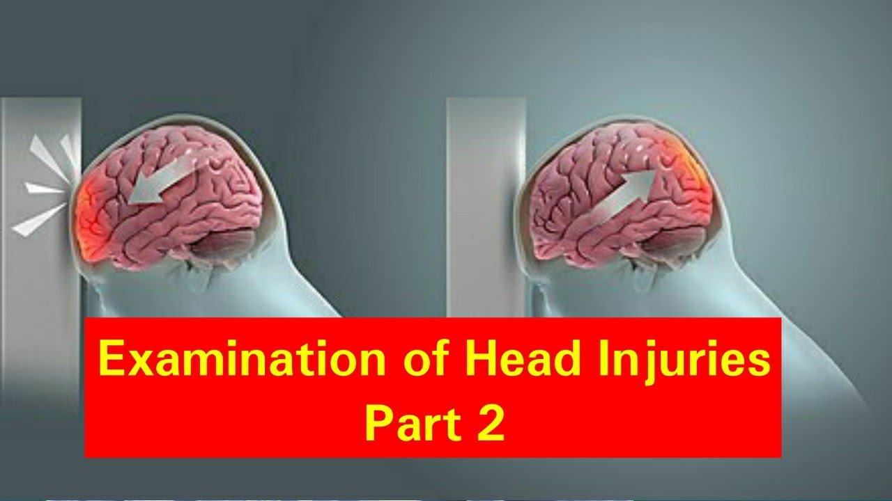 Download Examination of Head Injuries Part 2  Physical Assessment