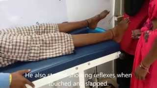 Spinal Cord Injury Patient After Three Acupuncture Treatments
