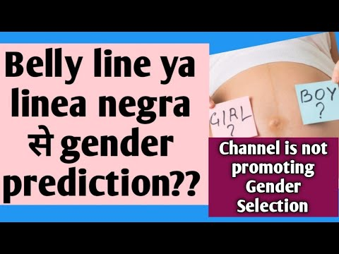 Gender prediction by belly line? What is linea nigra? #genderprediction #twinsmyworld