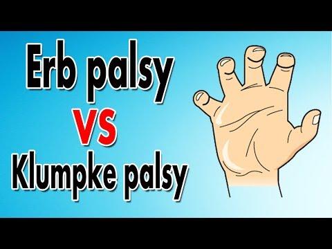 Mnemonic For Erb Palsy & Klumpke Palsy