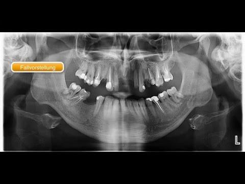 für Zahnärzte: Implantation + Bone Spreading