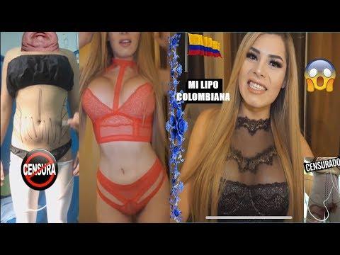 LIPOESCULTURA EN COLOMBIA 😱!!! Doctor Gabriel Lobo