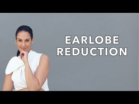 Earlobe Reduction by Dr. Sheila Nazarian in Beverly Hills, Los Angeles