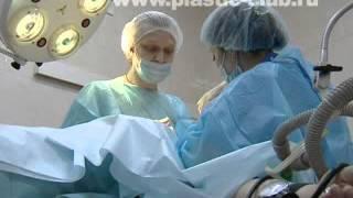 Пластика лица - ENDOTINE и увеличение груди, Игорь Белый (+18)