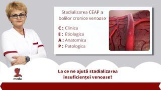 varicose biceps fotografie ishokan de la varicoseza