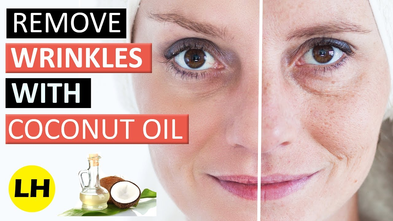 How to Get Rid of Wrinkles Naturally images
