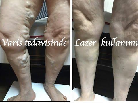 Lazer Ile Varis Ve Venöz Yetmezlik  Tedavisi (EVLT) : Prof.Dr.İlhan Gölbaşı