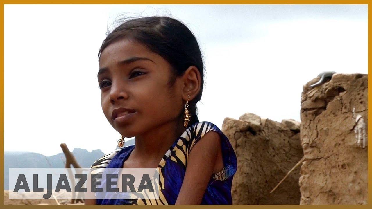 🇾🇪 10 years and 9 kilos: Child starvation takes its toll in Yemen l Al Jazeera English