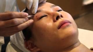 Non Surgical Eyelid Correction