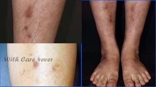 Voulez vous effacer les taches sombres sur vos jambes naturellement??!