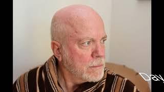 Efudex skin treatment review  - Ray Minter