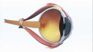 New technology aiding in AMD damaged retina to enter clinical trials in 2013