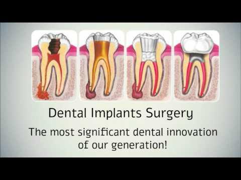 Affordable Dental Implants Surgery in Sarasota