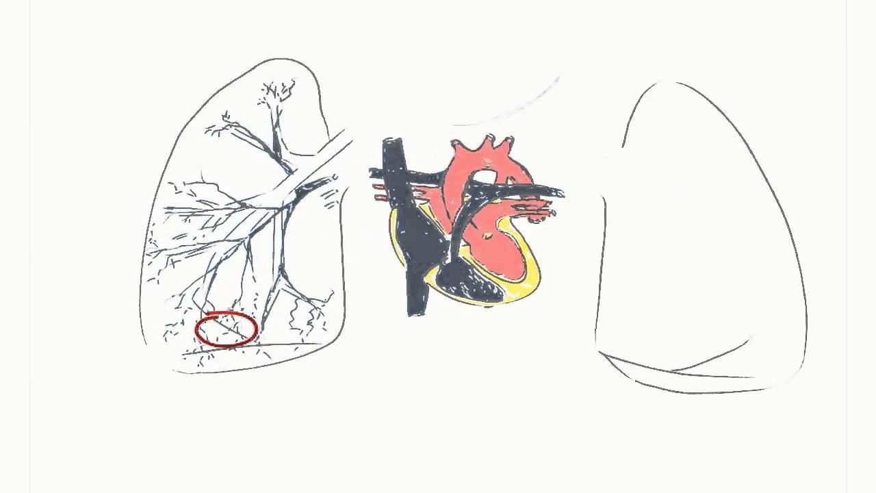 ¿Cómo es la hipertensión pulmonar?