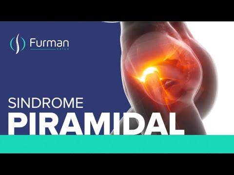 SINDROME PIRAMIDAL | Un Cuchillo Clavado En La Nalga 🔪 Causas - Síntomas - Tratamientos