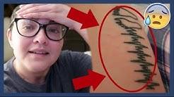 hqdefault - Rash Pimples Around Tattoo