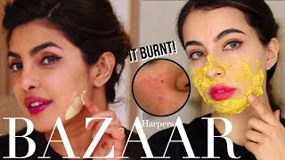 I Tried Priyanka Chopra's Guide to Skincare Face Mask & it Burnt My Skin