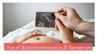 Допплерометрия в 3 Триместре | УЗИ Доплера при Беременности