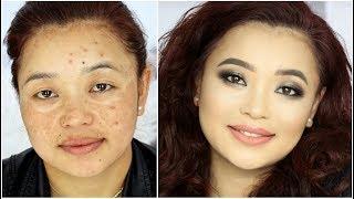 Makeup transformation for Hyper-Pigmentation / Acne Spots / Melasma