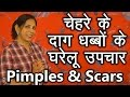 Pimple Scars and Acne - Home Remedies | A purposeful Beauty Videos in Hindi