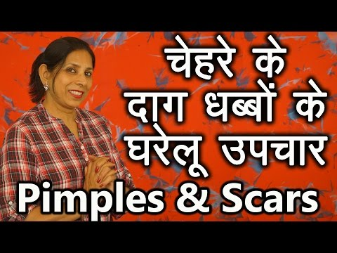 how to get rid of pimples home remedies in hindi