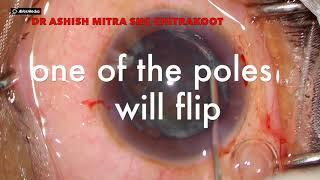#4 RULES TO MANAGE A SOFT CATARACT - DR ASHISH MITRA screenshot 4