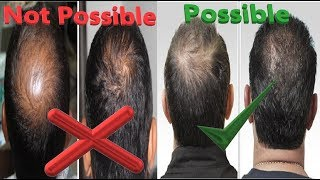 PRP Hair loss treatment before and after || PRP orininal VS fake results