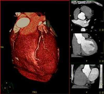 Exámenes para diagnosticar problemas del corazón