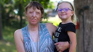 Burns Survivor Mum Rebuilds Her Life