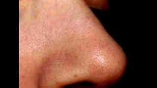Черные точки на носу как избавиться видео(Это замечательное мыло помогло мне навсегда избавиться от черных точек! Заказывала здесь - http://vk.cc/4AcuCh Прода..., 2016-01-06T23:58:50.000Z)