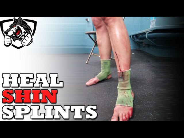 How To Heal Shin Splints From Running Or Muay Thai Youtube