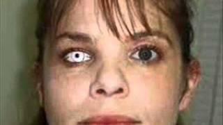 ocular prosthetic