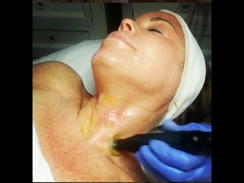 Ozone & Oxygen Detox Therapy Facials (Miami Beach, FL)