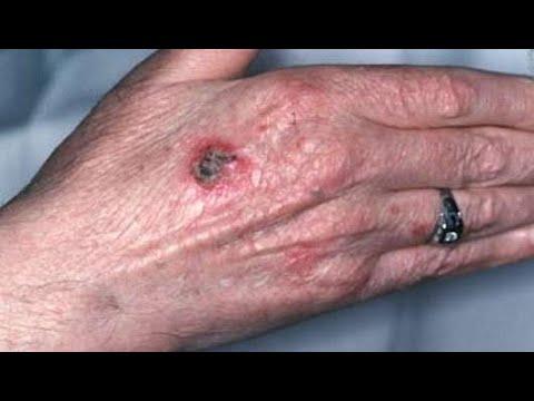 10 معلومات هامة لا يعرفها مرضى سرطان الجلد