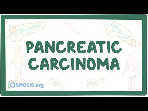 Pancreatic Carcinoma - Causes, Symptoms, Diagnosis, Treatment, Pathology