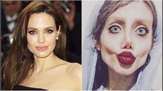 Mujer se somete a cirugías para parecerse a Angelina Jolie