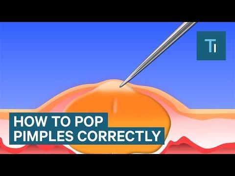 hqdefault - Pop A Pimple Without Pain