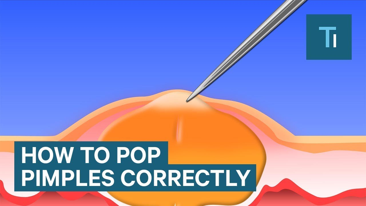 the only right way to pop your pimples [ 1280 x 720 Pixel ]