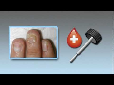 Treat Toenail Fungus: an Instructional Video by toenail-fungus.org