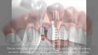 Имплантация зубов - зубные импланты
