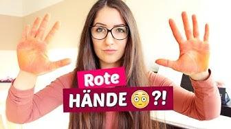 WARUM HAST DU SO ROTE HÄNDE 😳✋?! | Diie Jule