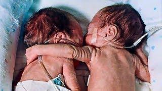 Infirmiera a pus copilul aproape mort lângă geamănul sănătos! Apoi a urmat o minune!