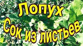 Лопух.  Сок из листьев.