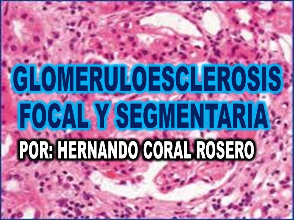 cura de glomeruloesclerosis segmentaria focal para la diabetes