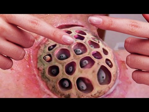 Mysterious Cupping Therapy Fire Cupping Wet Cupping And Trypophobia Youtube