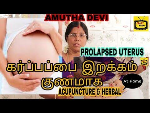 கர்ப்பப்பை இறக்கம் குணமாக | Prolapsed Uterus Acupuncture & Herbal Cure | Amutha Devi | Crazy Andam