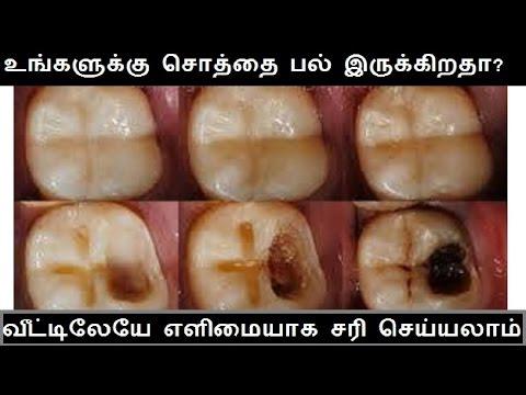 உங்களுக்கு சொத்தைப் பல் இருக்கா? அதை வீட்டிலேயே ஈஸியா சரிசெய்யலாம் | Solution for Black Tooth Decay