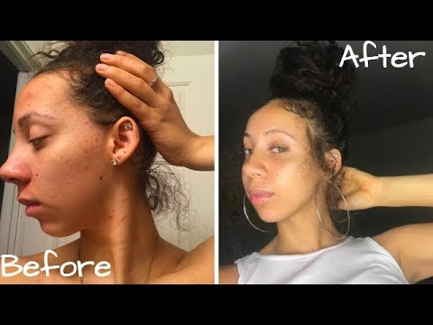 How I Cleared My Acne Living With Hard Water