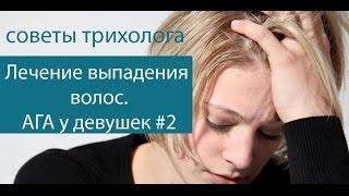 видео Что такое андрогенная алопеция? Как поддается лечению?